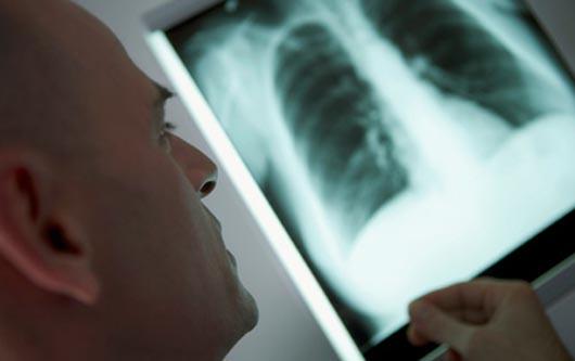¿Se puede prevenir la neumonía?