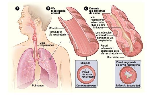 ¿Qué es el asma?
