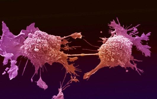 Reducción de las disparidades de salud vinculadas al cáncer