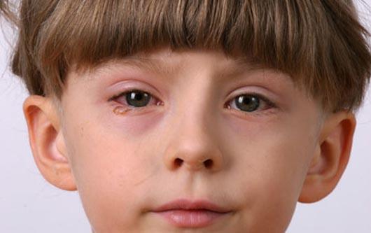 La conjuntivitis generalmente es leve y fácil de tratar