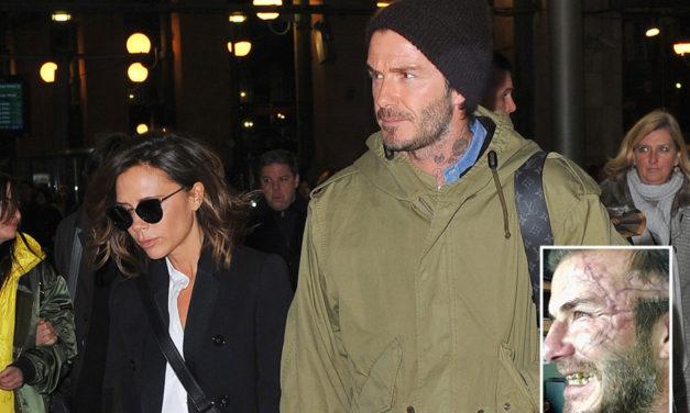 ¿Qué le ha pasado a Beckham en la cara?
