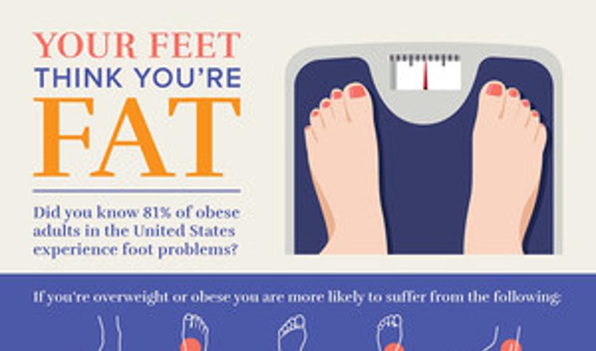 El 81 por ciento de los estadounidenses obesos experimenta dolor de pie